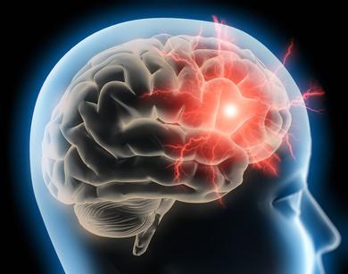 Neurobation - Gedächtnistraining